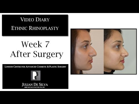 Watch Video Diary: Ethnic Rhinoplasty Week 7 after Surgery