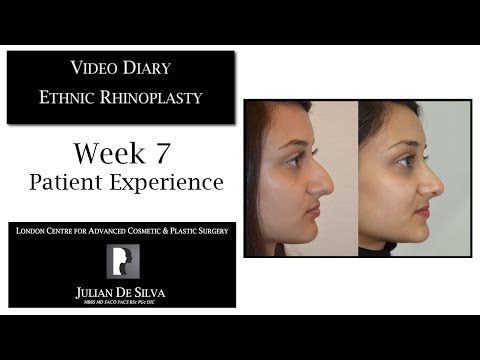 Watch Video Diary: Ethnic Rhinoplasty Week 7 Patient Experience