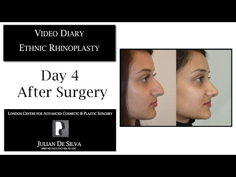 Watch Video Diary: Ethnic Rhinoplasty Day 4 after Surgery