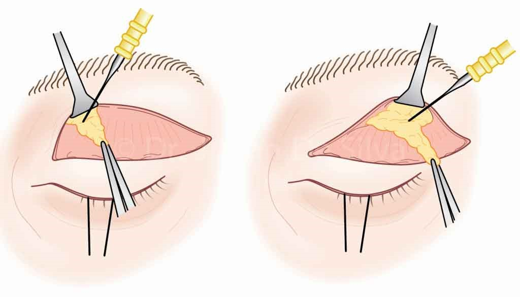 blepharoplasty, surgery techniques