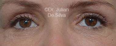 Eyelid Surgery (Blepharoplasty) After 26