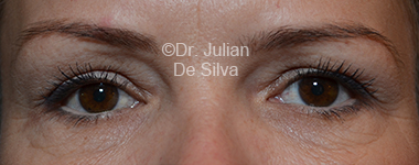 Eyelid Surgery (Blepharoplasty) Before 26
