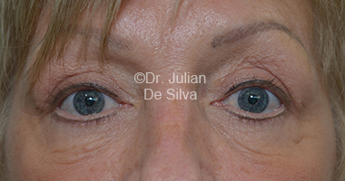 Eyelid Surgery (Blepharoplasty) After 27