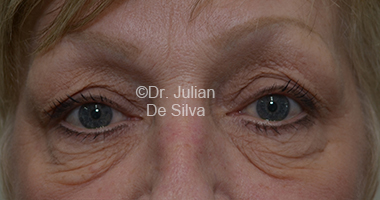 Eyelid Surgery (Blepharoplasty) Before 27