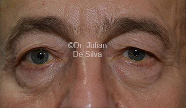 Eyelid Surgery (Blepharoplasty) Before 29