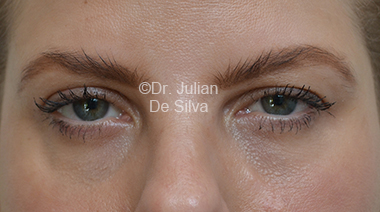Eyelid Surgery (Blepharoplasty) Before 30