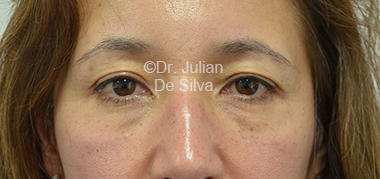 Eyelid Surgery (Blepharoplasty) Before 32