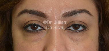 Eyelid Surgery (Blepharoplasty) Before 33
