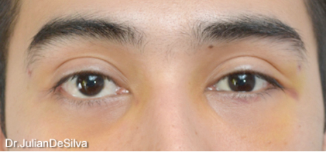 Eyelid Surgery (Blepharoplasty) After 15