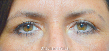 Eyelid Surgery (Blepharoplasty) After 12