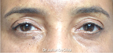 Eyelid Surgery (Blepharoplasty) After 14