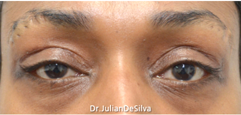 Eyelid Surgery (Blepharoplasty) After 18