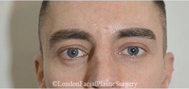 Eyelid Surgery (Blepharoplasty) After 23