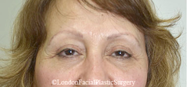 Eyelid Surgery (Blepharoplasty) After 24