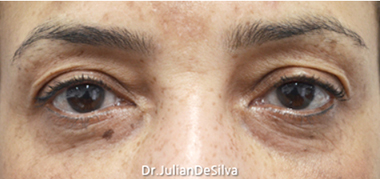 Eyelid Surgery (Blepharoplasty) Before 14