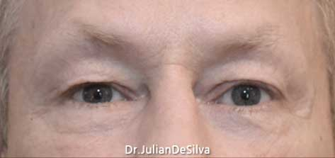 Eyelid Surgery (Blepharoplasty) Before 19