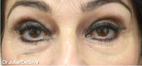 Eyelid Surgery (Blepharoplasty) Before 20