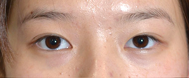 Eyelid Surgery (Blepharoplasty) Before 21