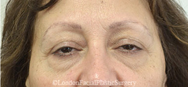 Eyelid Surgery (Blepharoplasty) Before 24