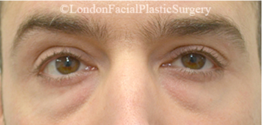 Eyelid Surgery (Blepharoplasty) Before 25