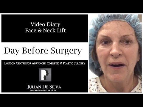 Watch Video: Facelift & Neck Lift Video Diary Before Surgery