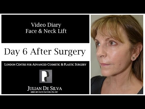 Watch Video: Facelift & Neck Lift Video Diary Day 6 After Surgery