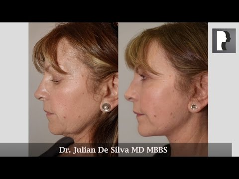 Watch Video: Facelift & Neck Lift Review & Testimonial