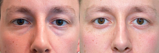 Male face Before and After Lower Blepharoplasty Scar at 6weeks, front view, patient 2