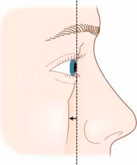 Upper and lower eyelids is usually seen as one of the characteristics of an ageing face - pictures schem
