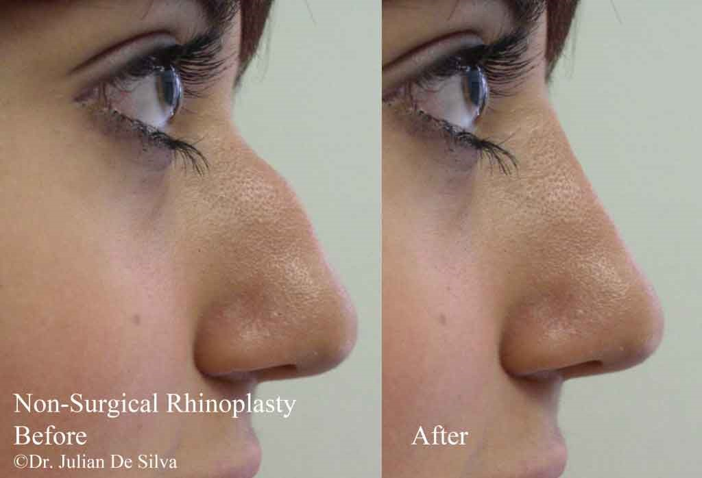 Woman's face, before and after non-surgical rhinoplasty treatment, right side view