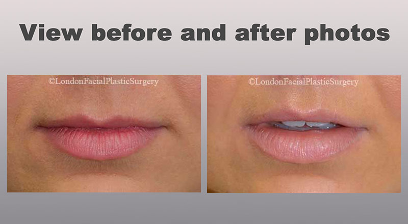 View Lips Before and After Photos