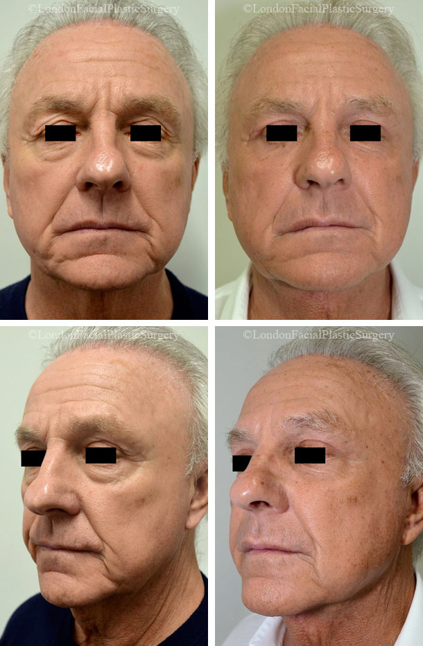 Male face, Before and After Facelift & Neck Lift Treatment, front and left side oblique view, patient 1