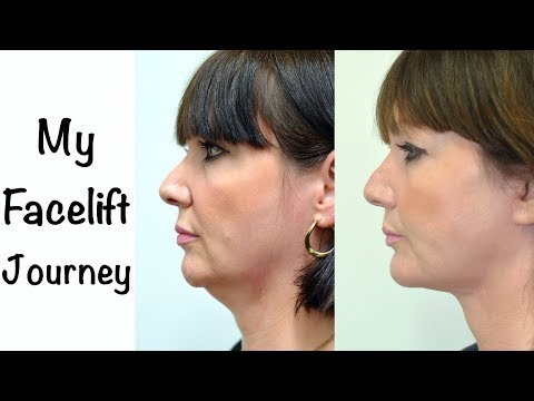 Watch Video: My face and neck lift surgery experience with a chin implant...under twilight anaesthesia