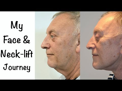 Watch Video: As a man, undergoing a face and neck lift surgery is a big decision ... a man's perspective
