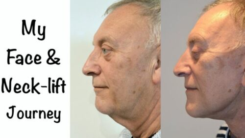 Male face, Before and After Facelift & Neck Lift Treatment, left side view (Journey)
