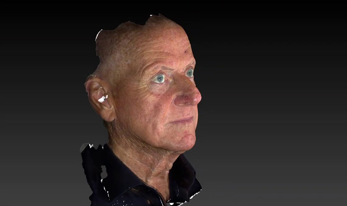 Watch Video: A 3D Analysis of a male patient that underwent face and neck lift surgery (with Photos)