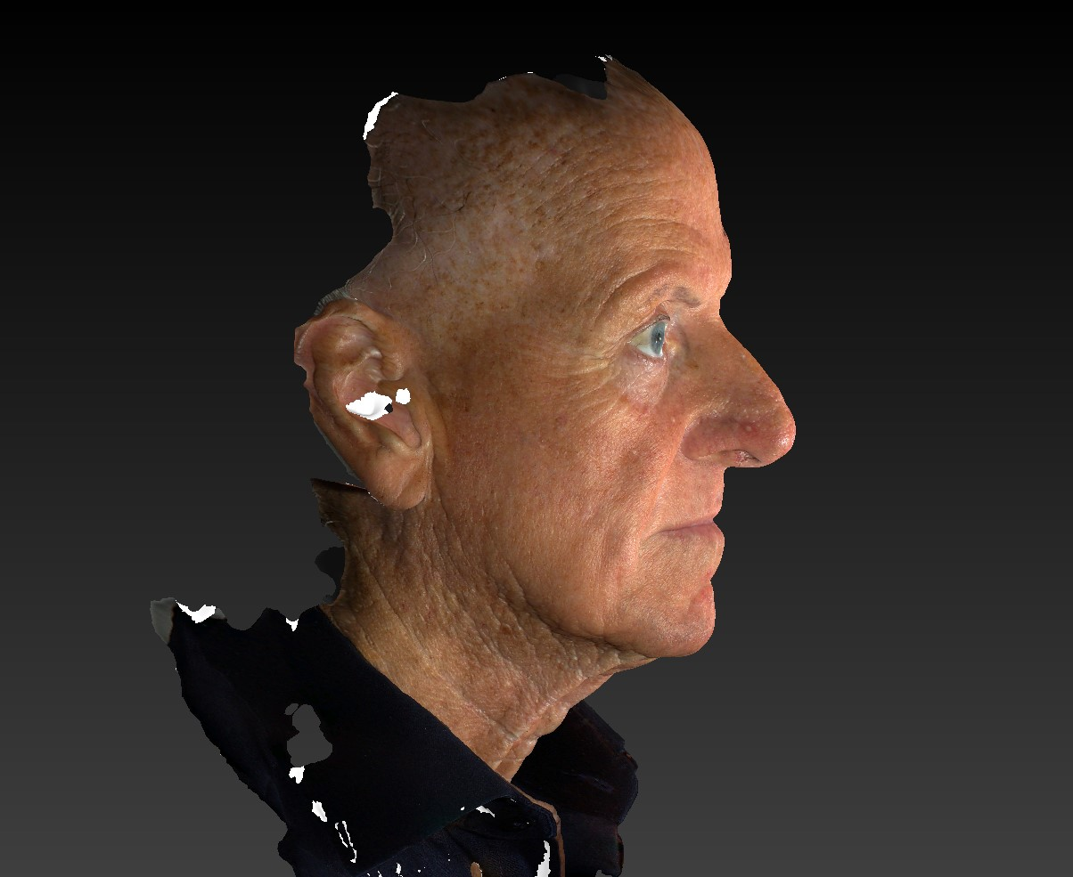 3d model Male face, Facelift & Neck Lift Treatment, right side view,