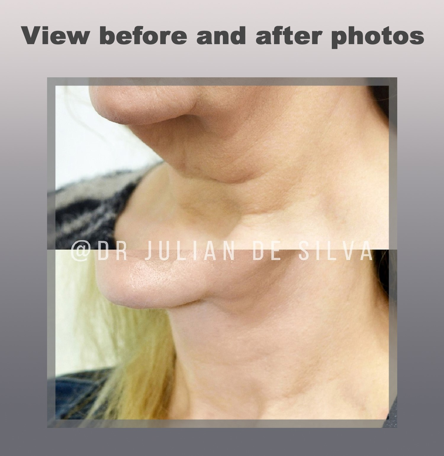View before and after photos - Necklift