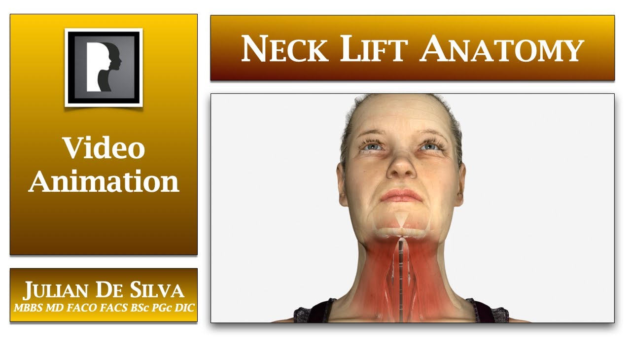 Watch Video: Neck lift surgery, what anatomy changes with age?