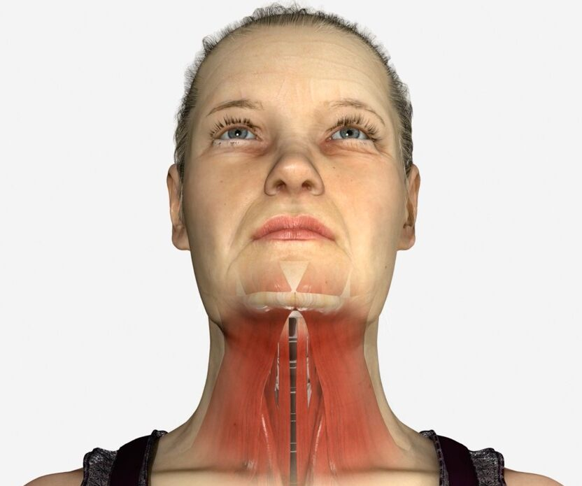 Woman's neck (schem muscul on neck)