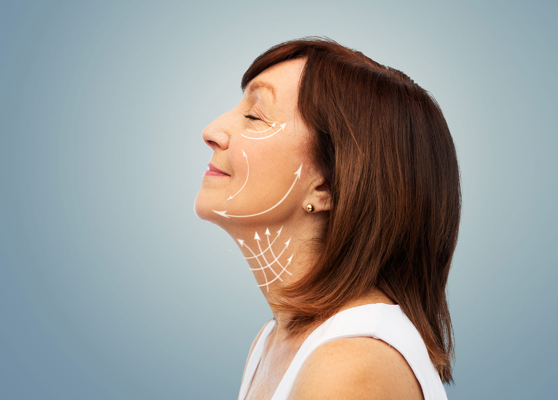 Woman's face (schem lines on face and neck, after surgery)