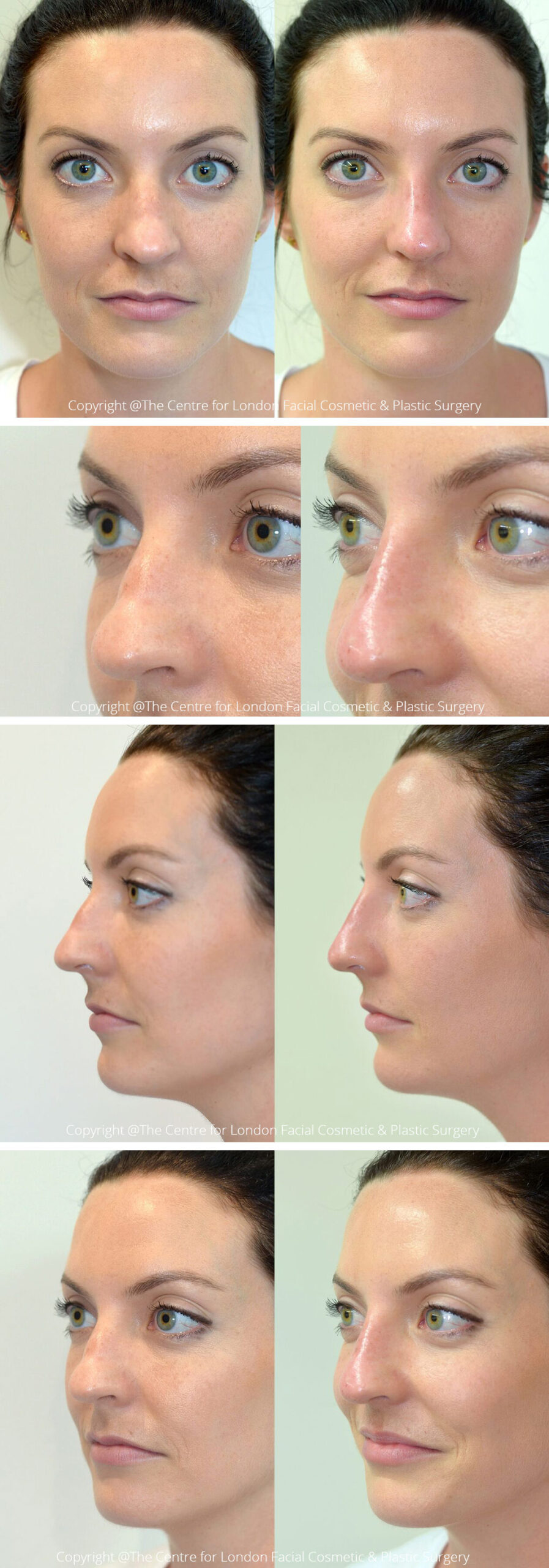 Woman's face, Before and After Non-Surgical Rhinoplasty Treatment, front, left side and oblique view, patient 2