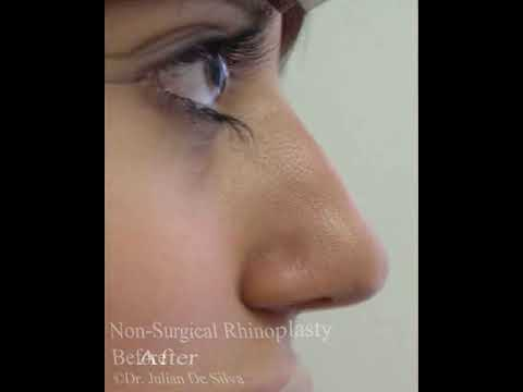 Watch Video: Non Surgical Nose Job
