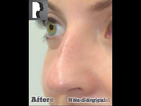 Watch Video: Non- Surgical Rhinoplasty (after)