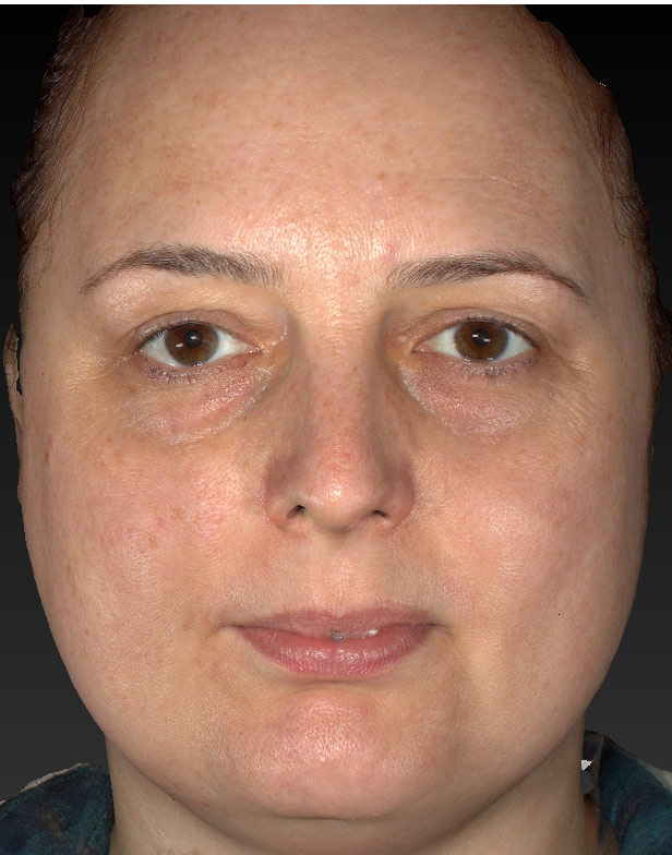 Associated techniques Blepharoplasty - woman's face