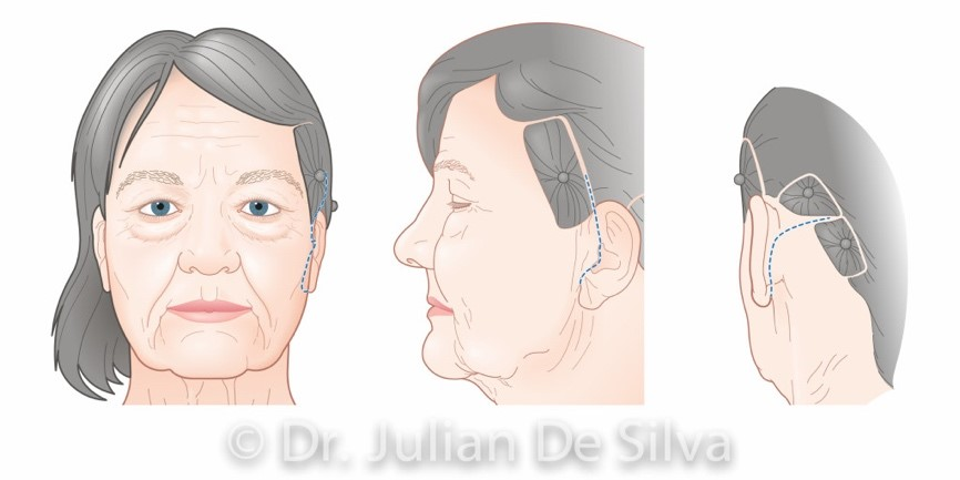Facelift surgery (areas on the head, around ears)