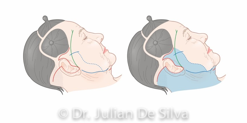 Facelift surgery (surgery areas on the head, around ears)