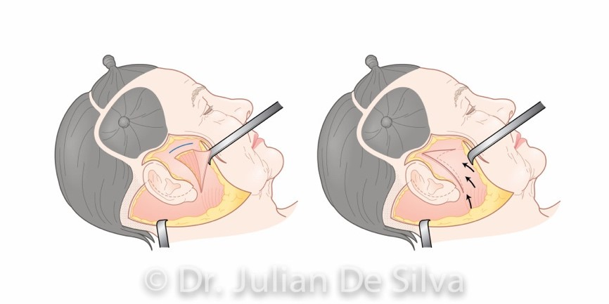 Facelift surgery (surgery areas around ears)