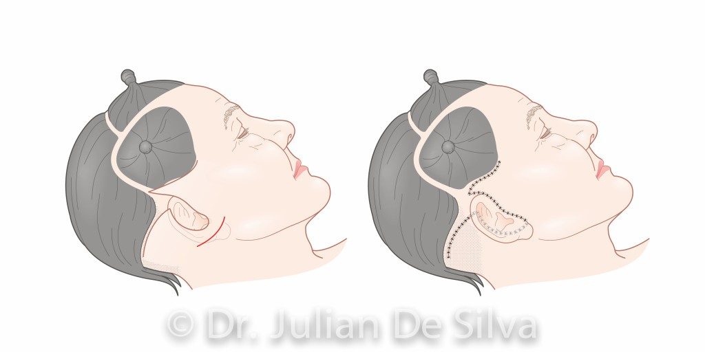 Facelift surgery (surgery areas around ears after surgery)