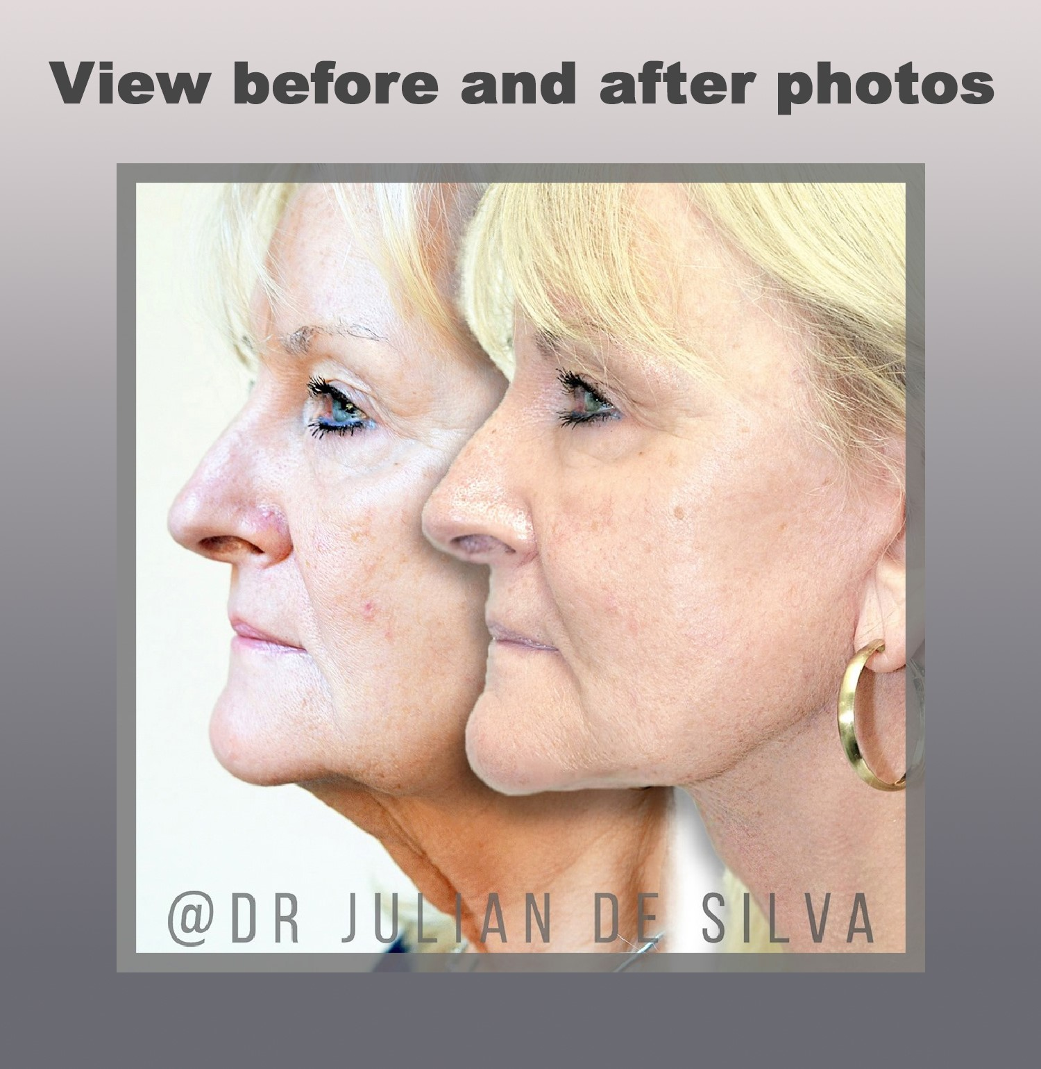 Facelift surgery. Before and After Treatment photos